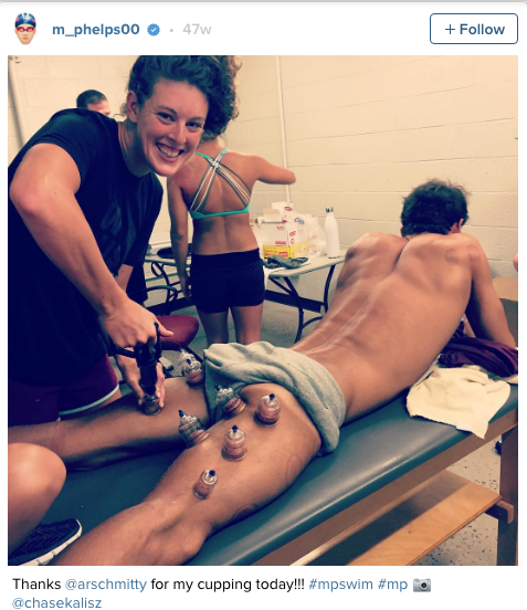 Cupping-for-athletes