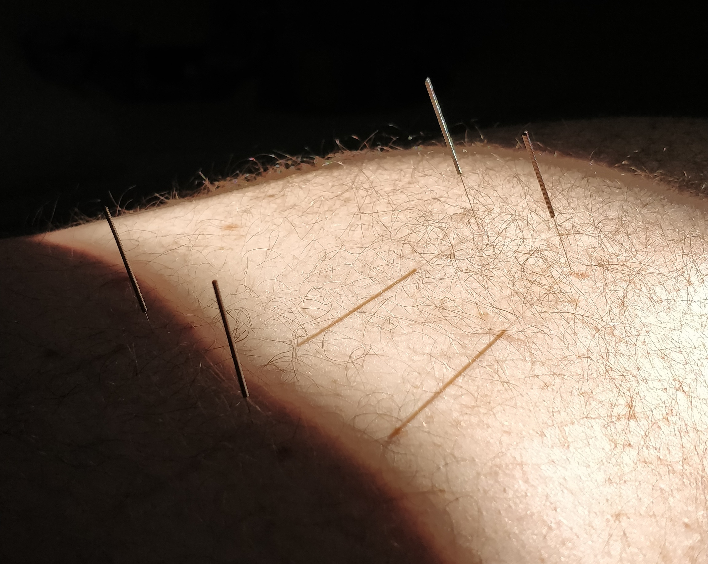 Chenzen-Acupuncture_Canberra_needling